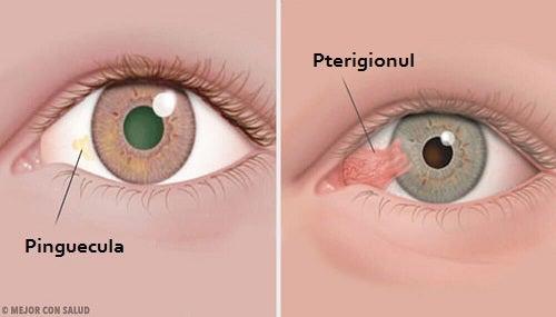 Principalele afectiuni ale ochiului   7-pitici.ro