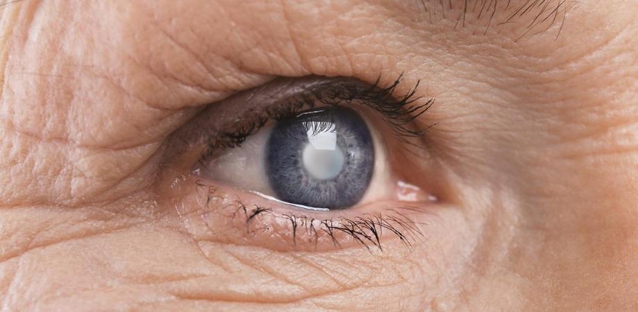 Boala vederii senile