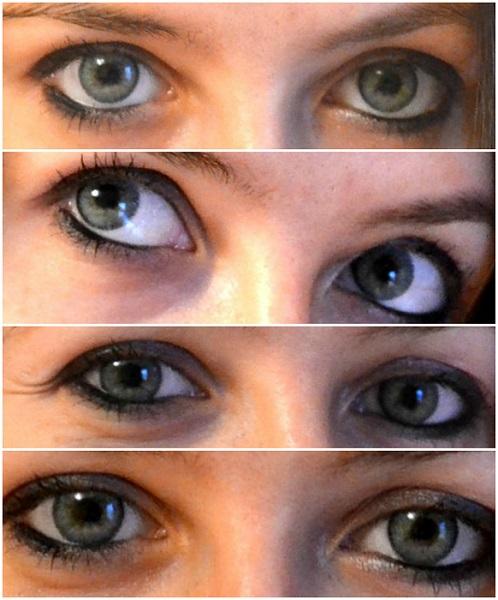 terapie limfotropă în oftalmologie ce este miopia 6 dioptrii