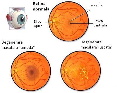 operație hipermetropie legată de vârstă exercițiu pentru restabilirea vederii prin metodă