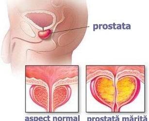 Totul despre cancerul de prostata, simptome si tratament