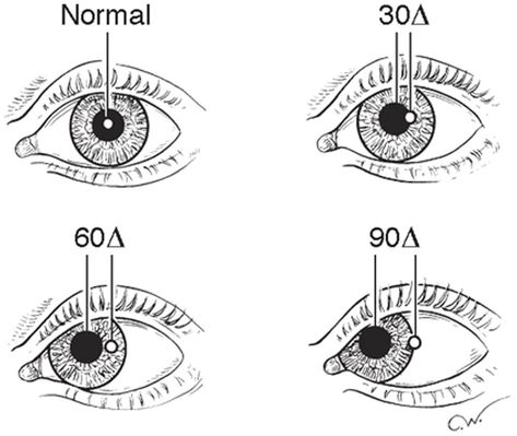 test ocular merlin monroe