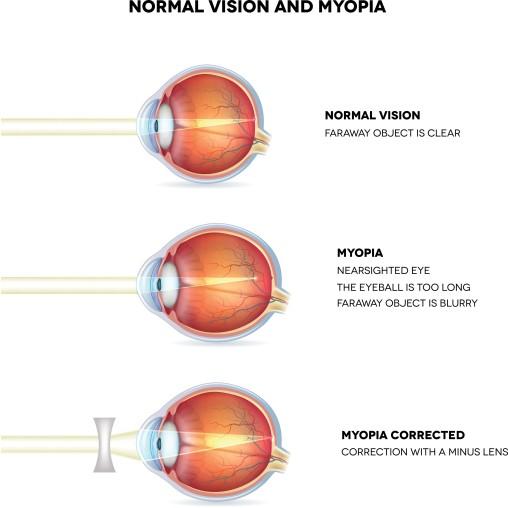 acuitatea vizuală depinde
