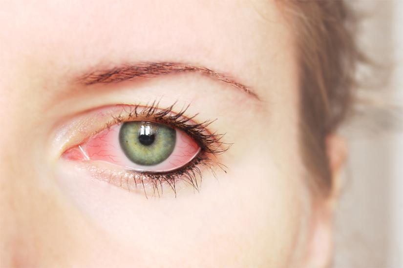 7 pași pentru sănătatea ochilor