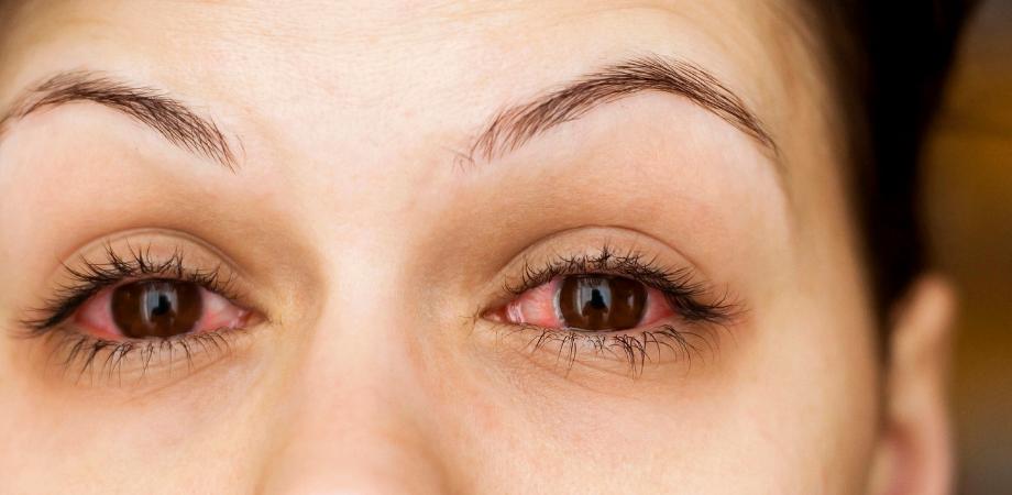 ochi rosu vedere incetosata viziune minus 6 ce înseamnă