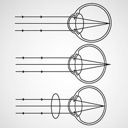 hipermetropie pentru a opera scăderea vederii la distanță