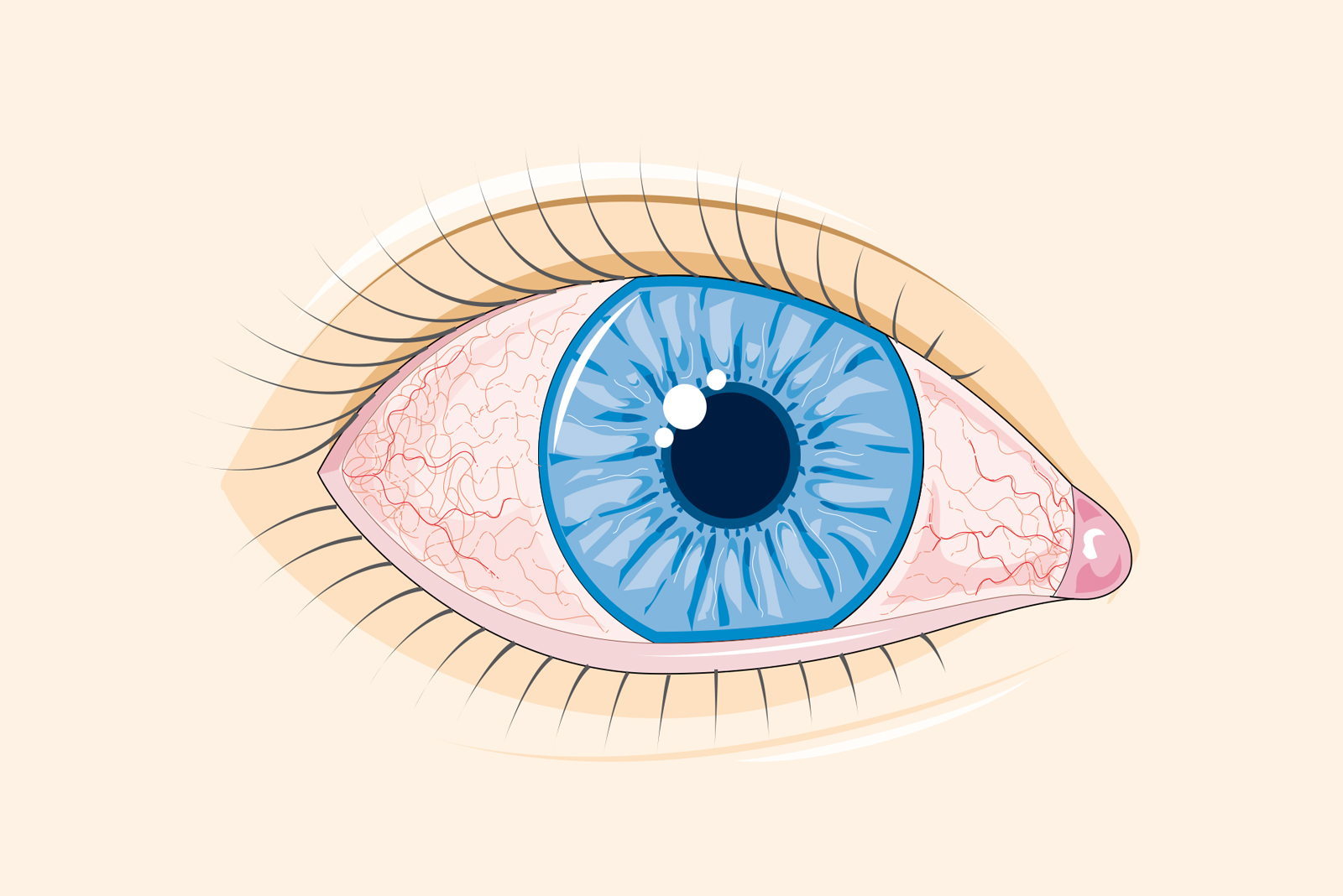 vedere încețoșată ochiul drept