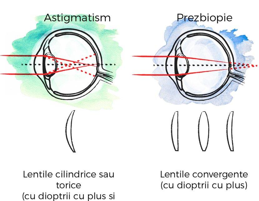 3 miopie cu deficiențe de vedere