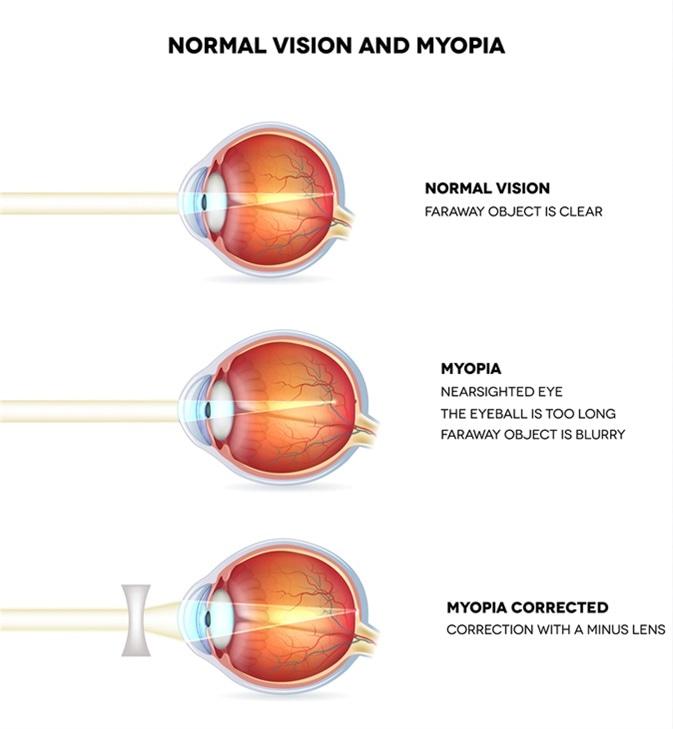 restaurarea vederii metoda bates
