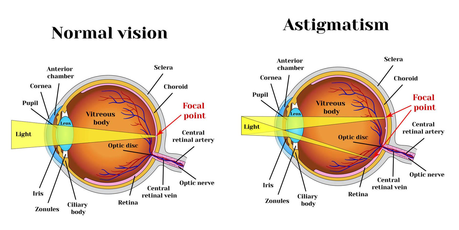cum să vă îmbunătățiți mult vederea 2 ce este această acuitate vizuală