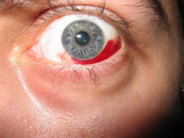 vedere slabă din cauza spasmului