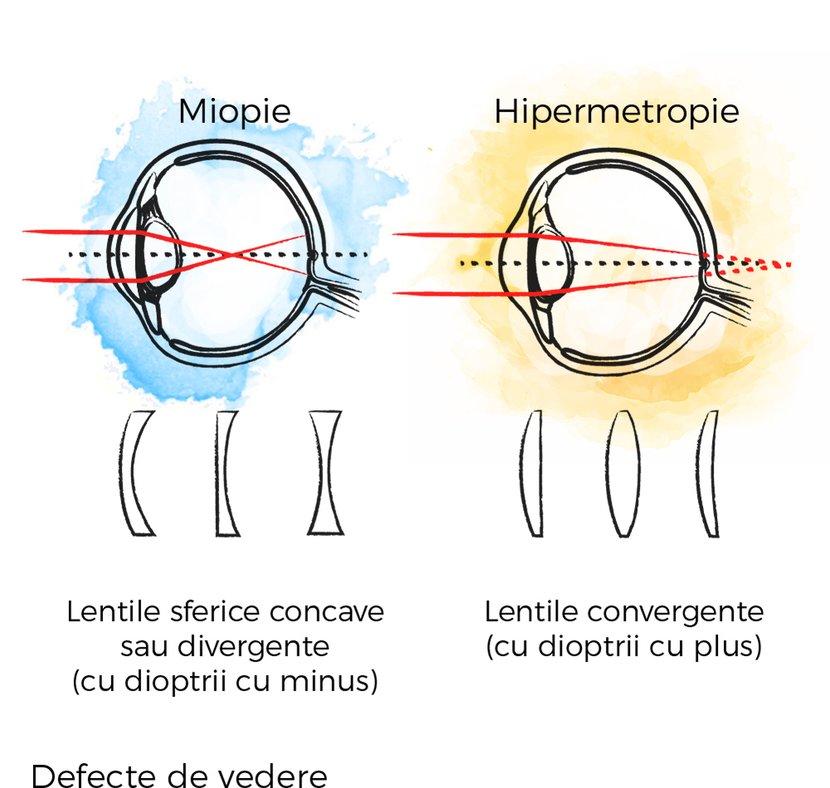 hipermetropie miopie astigmatism acuitate vizuală