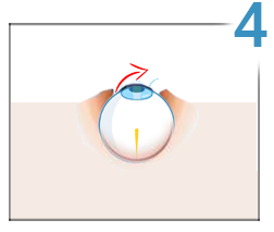 Modul în care laserul corectează vederea