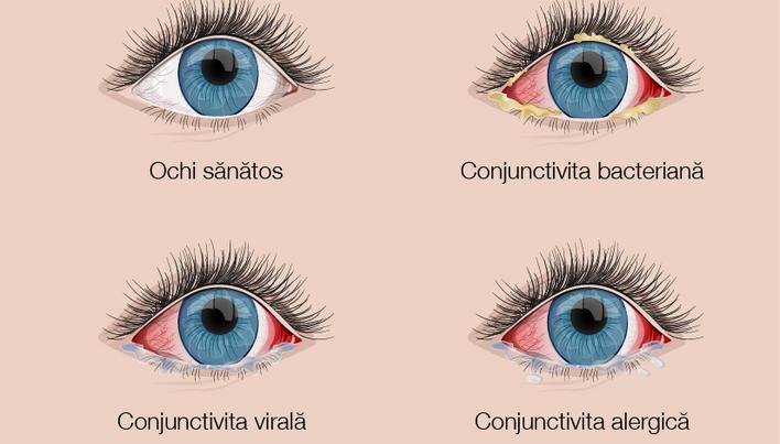 Recenzii de homeopatie pentru tratamentul vederii