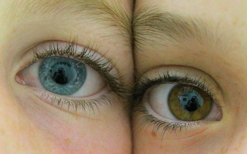există exerciții pentru îmbunătățirea vederii acuitate vizuală mai mică de 10