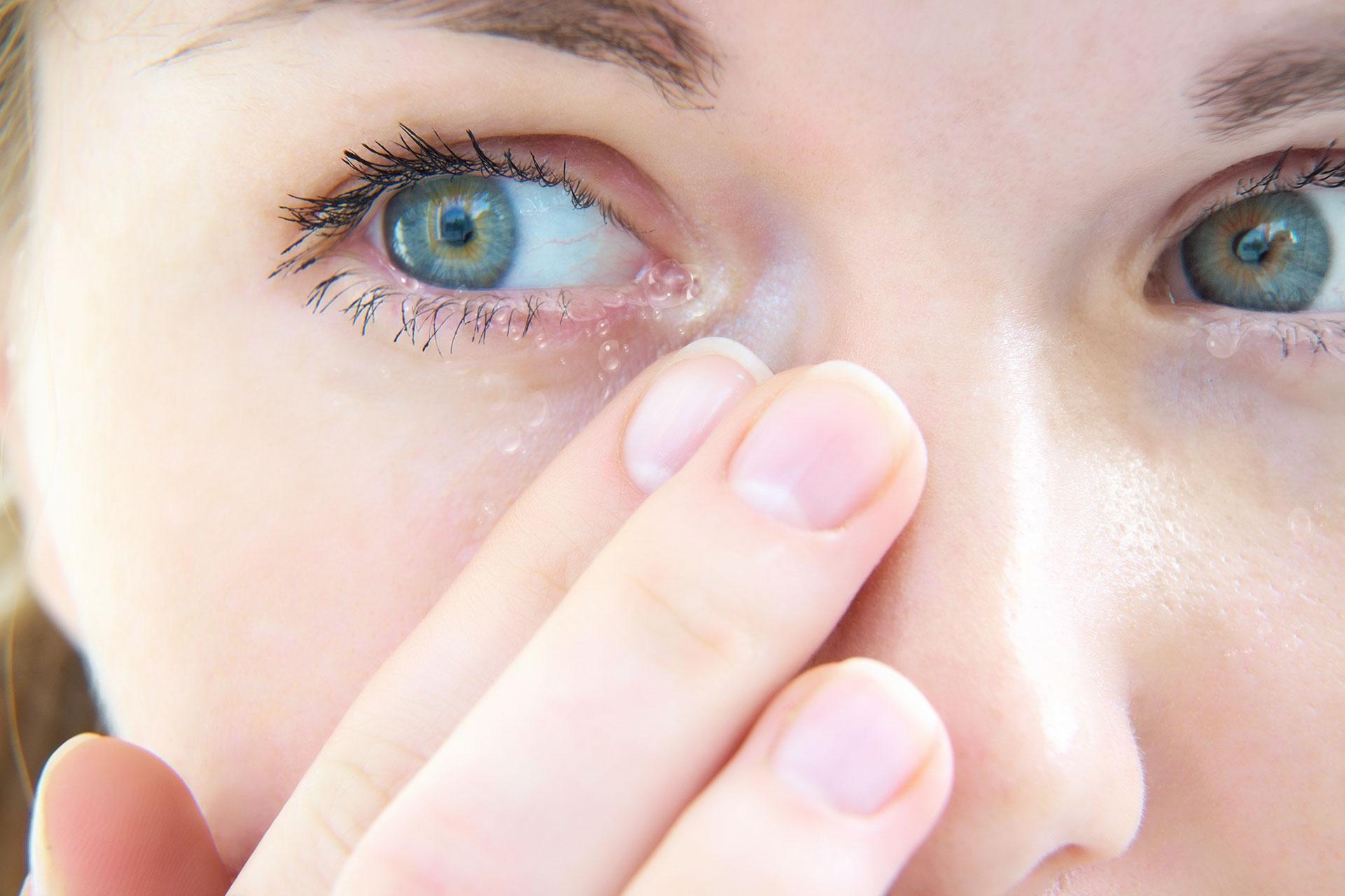 miopia severă este cât de mult viziune cu o nuanță roșie