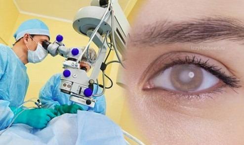îmbunătățirea vederii după operația de cataractă
