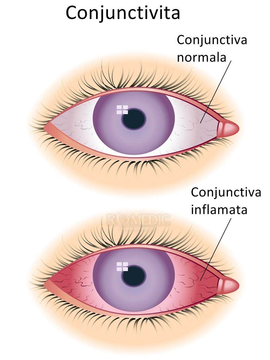 Cheratită - simptome și tratament