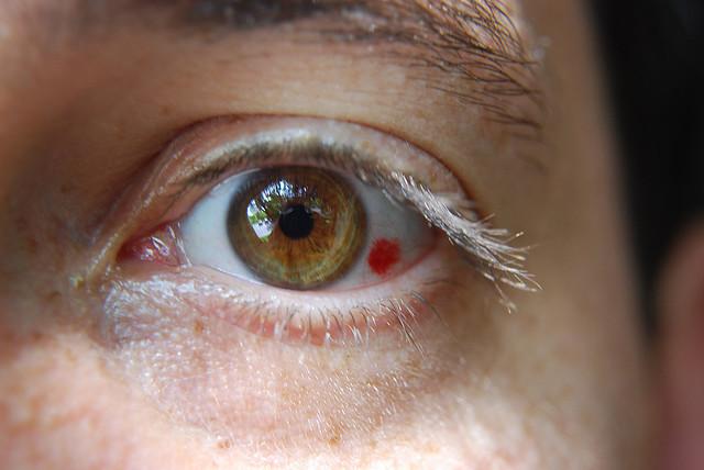 reînnoi viziunea vedere cu un singur ochi după operație