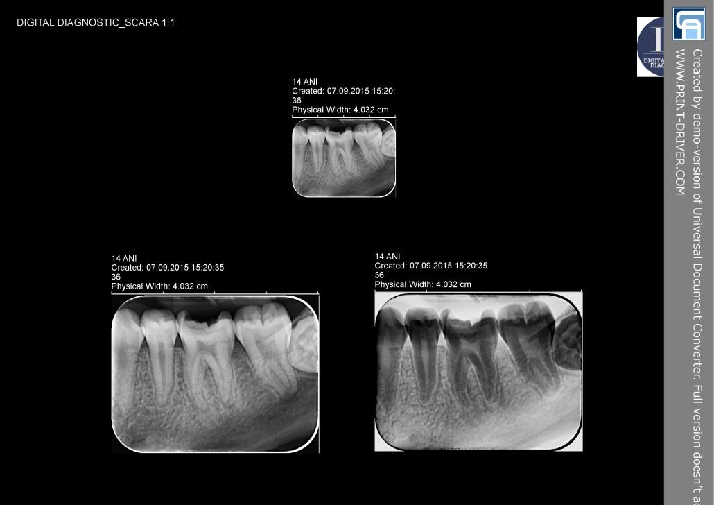 Chisturi dentare