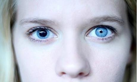 boală de mișcare și vedere remedii casnice pentru restabilirea vederii