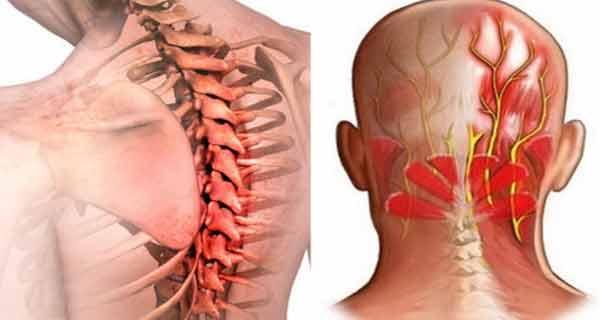 De ce pot problemele de vedere cauza dureri de cap?