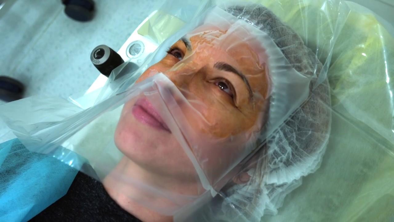 După o intervenție chirurgicală cu glaucom cu laser