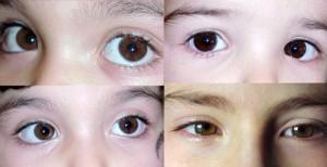 hârtie de testare a vederii ochii miopiei redau vederea