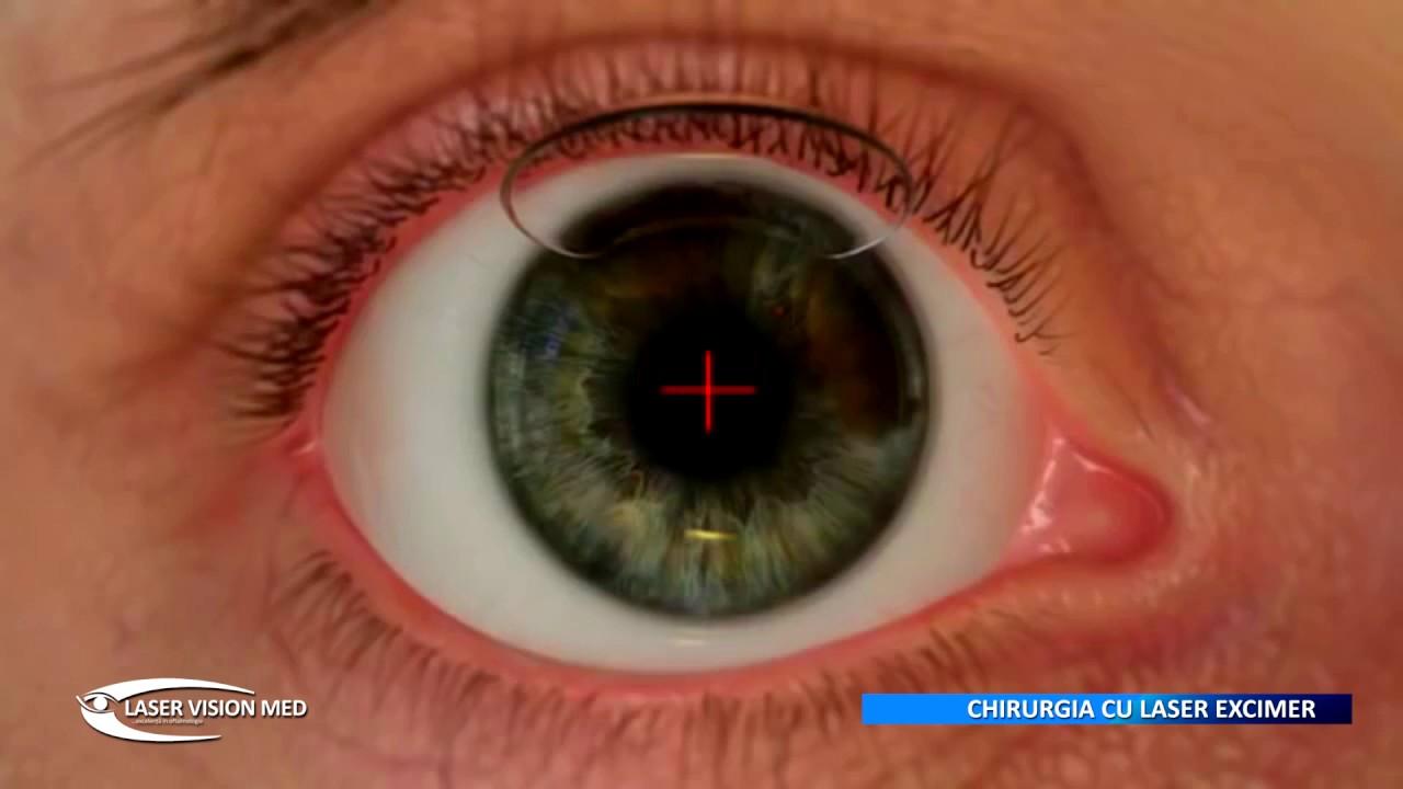 test de vedere boli oculare