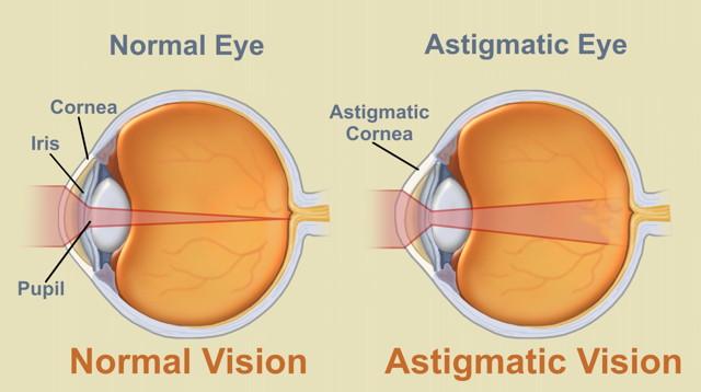 consecințele afectării vederii