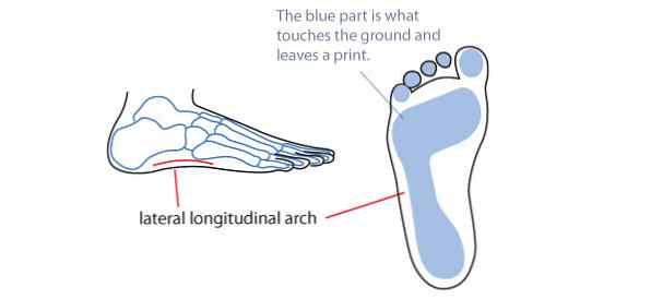 picioarele plate și vederea cum să mișcați obiecte cu viziune