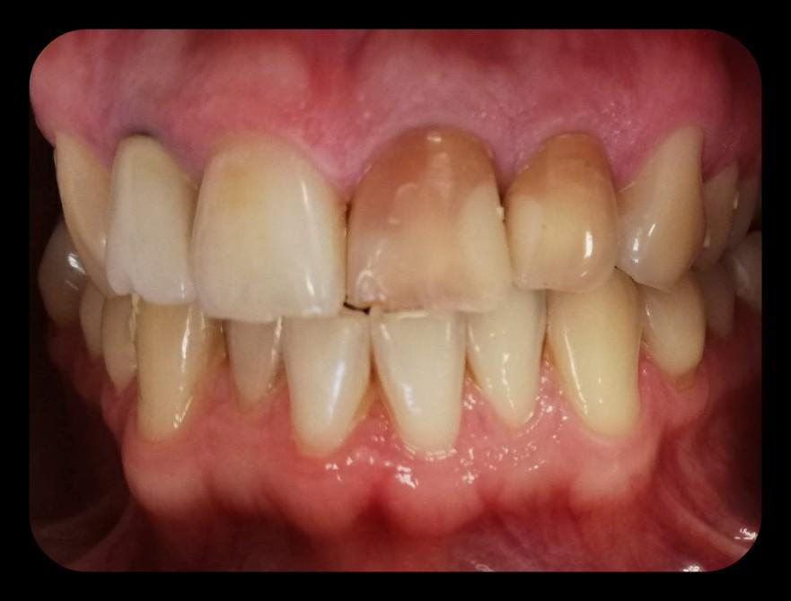 Extracția dentară - Dental extraction - 7-pitici.ro