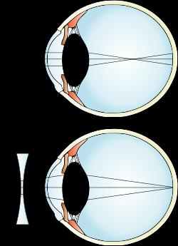 chirurgie restaurarea vederii cu laser