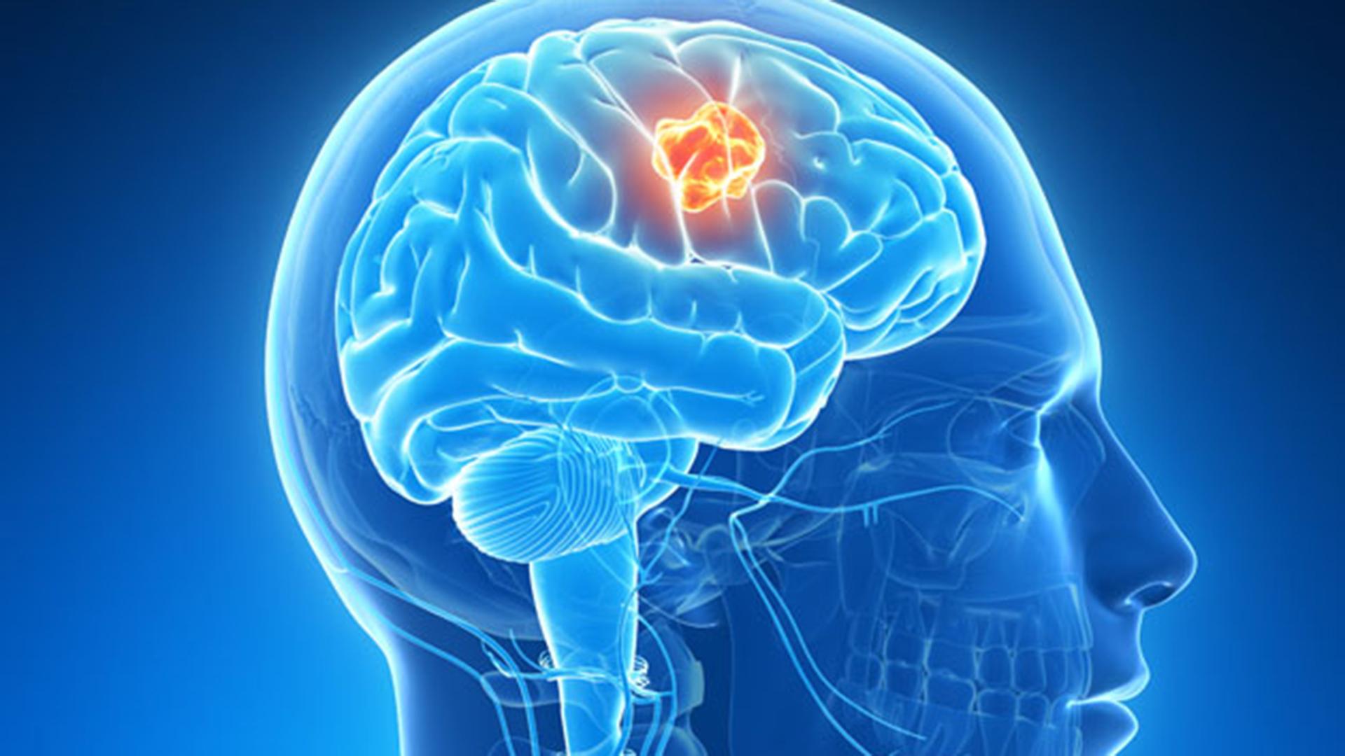 Presiunea ochilor: simptome și tratament - Aritmie September