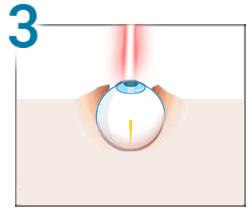 scăderea vederii seara cataractă complicată de miopie