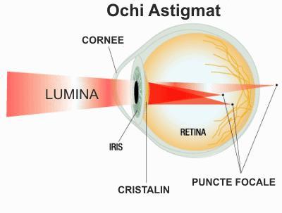 Corectarea chirurgiei oculare a miopiei la ce vârstă poate fi făcută