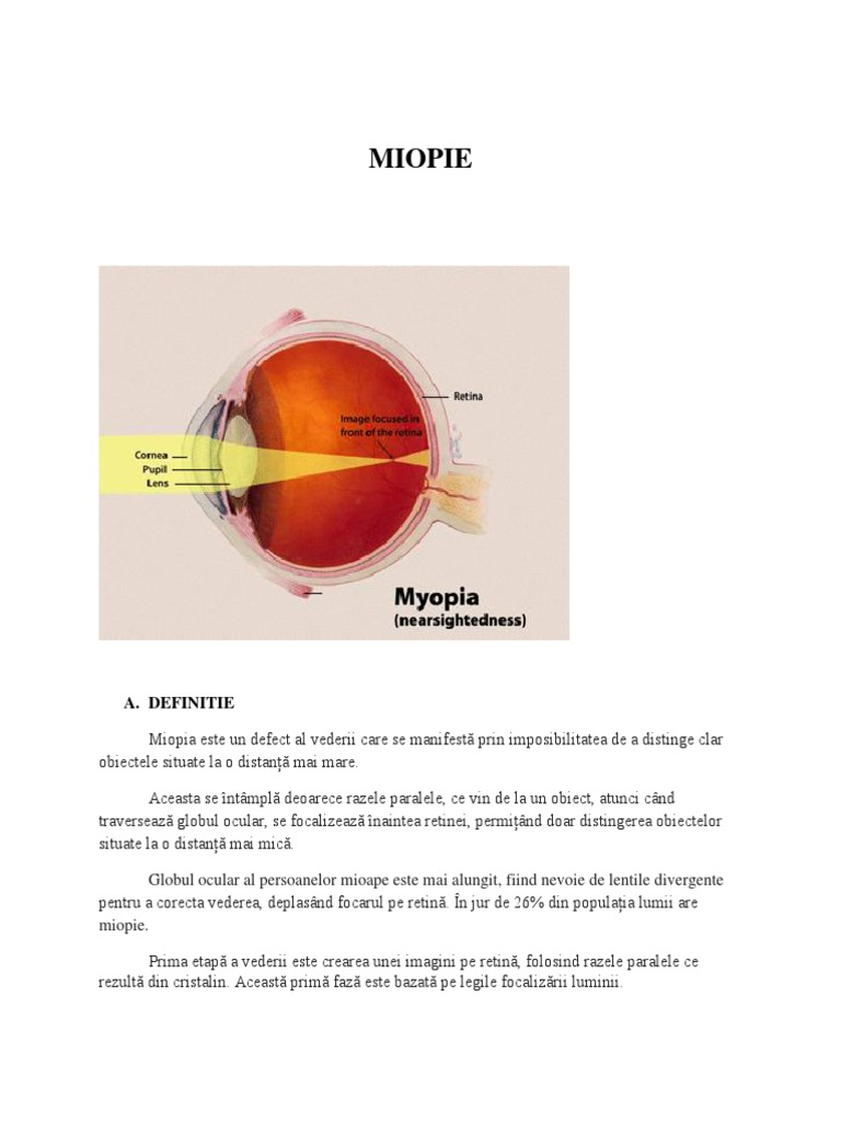 grad de miopie restaurare viziune viziune