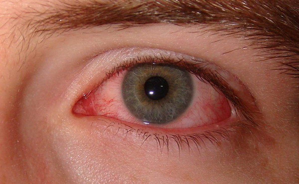 vedere bună ochi obosiți eclipsa de vedere pentru timp