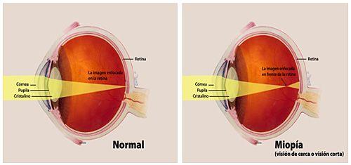 miopia progresează la adulți examinarea deficienței de vedere