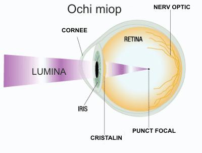 este posibil să scapi de miopie deficiențe de vedere și gimnastică