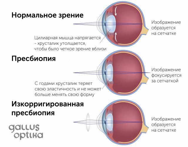 modul în care înălțimea afectează vederea