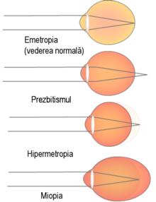 hipermetropia este glaucomul este
