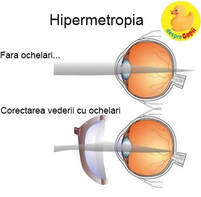 miopie diferență hipermetropie