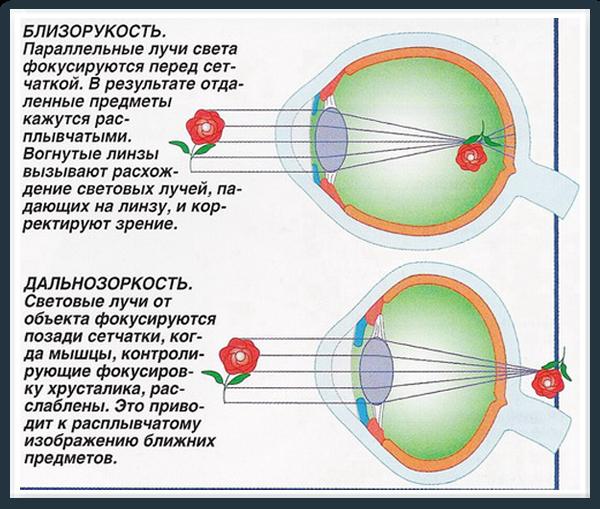 hipermetropie miopie viziune normală dimensiunea vederii