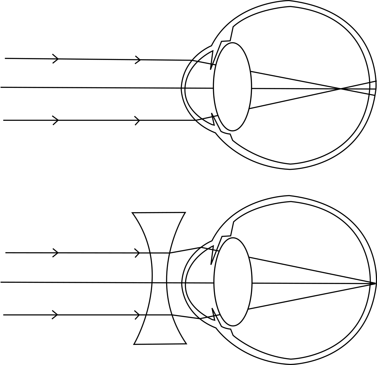 diagrama miopiei vindecați exercițiul vizual