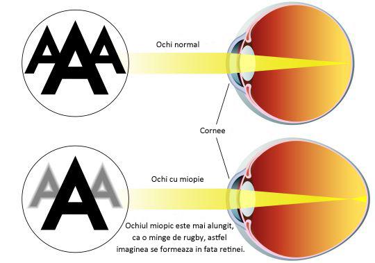 selectarea opticii pentru vedere boala vederii pe o