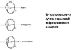 Vizitarea restaurării prin metoda profesorului Zhdanov