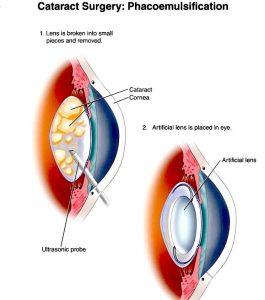restabilirea vederii în glaucom