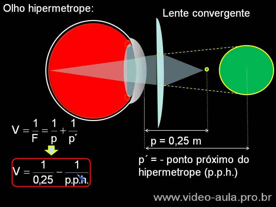 video hipermetropie