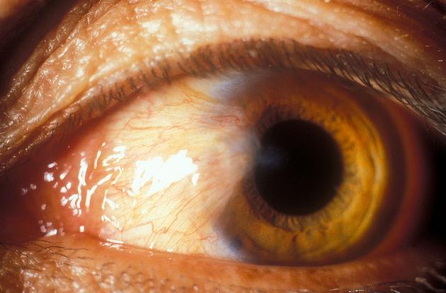din cauza vederii slabe îi strânge ochii cum să vă îmbunătățiți exercițiile de vedere